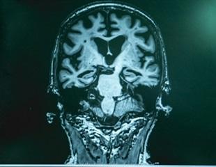 Breakthrough Alzheimer's discovery