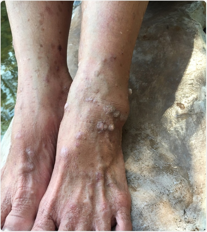 Neurodermatitis cause. Lichen simplex is a skin condition that begins with an itch. The inch can develop any where on the surface of body ( eg. foot, arm, neck, back). Image Credit: Angel_Jaeng / Shutterstock