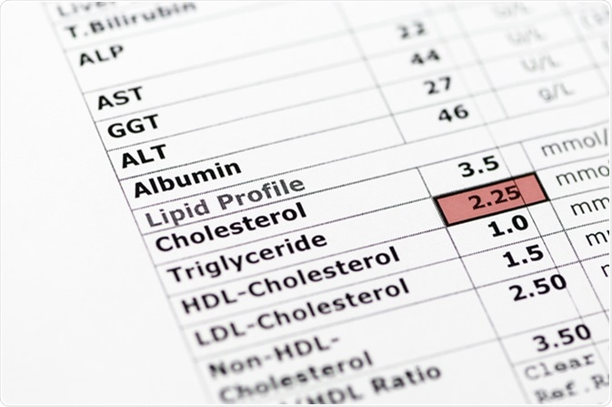 Blood chemistry report showing normal liver function tests, and a lipid profile with high triglyceride levels. Image Credit: Stephen Barnes / Shutterstock