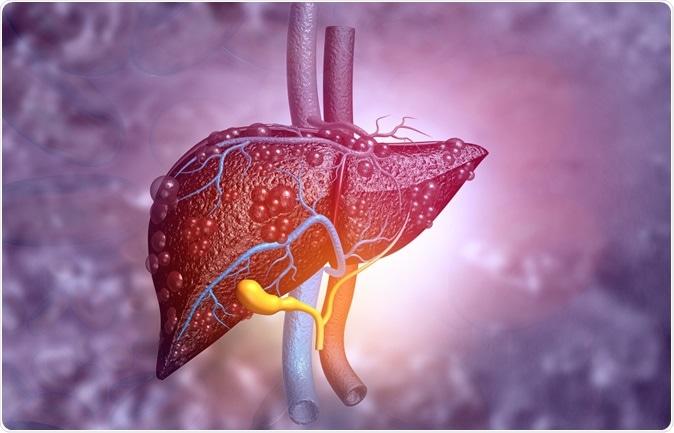 3d illustration of diseased liver. Image Credit: Explode / Shutterstock