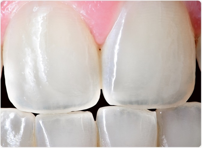 Extreme close up of the front incisor teeth of an adult human female. Image Credit: Muskoka Stock Photos / Shutterstock