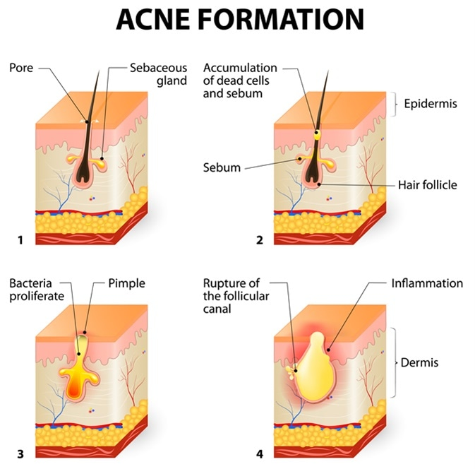Formation of skin acne or pimple. The sebum in the clogged pore promotes the growth of a certain bacteria (Propionibacterium Acnes). This leads to the redness and inflammation associated with pimples. Image Credit: Designua / Shutterstock