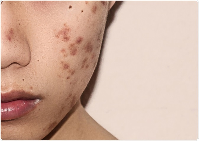 Close-up of acne on the skin. Image Credit: KirinIsHappy / Shutterstock