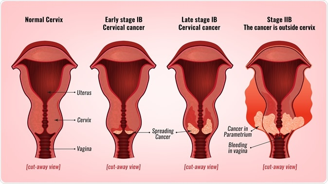 Cervical cancer development. Image Credit: Double Brain / Shutterstock
