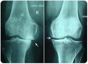 Knee osteoarthritis stages II and III by Harrygouvas at Greek Wikipedia. [CC BY-SA 3.0 or GFDL 1.3], from Wikimedia Commons