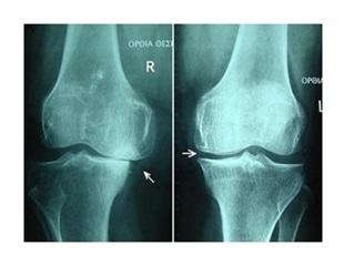Using NIR Spectroscopy to Evaluate Treatment Needed for Osteoarthritis