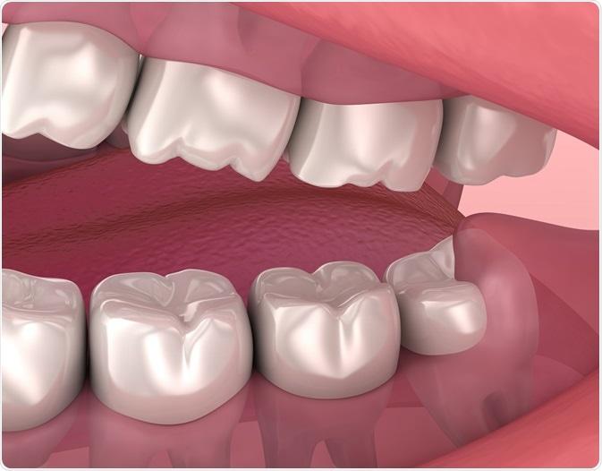 Wisdom teeth - By Alex Mit