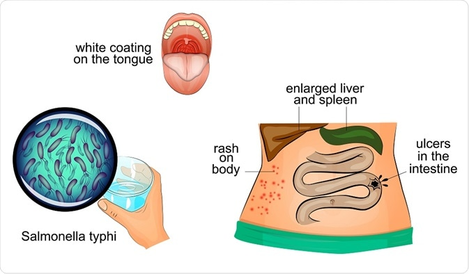 Symptoms of typhoid fever