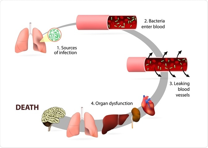 The stages of sepsis - a diagram - By Designua