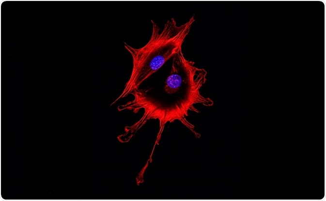 Cell visualized using fluorescence microscopy - two cells stuck together have to be removed using gating. By DrimaFilm