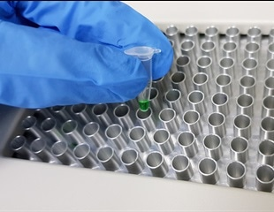 Reducing PCR Inhibition in Forensic Science