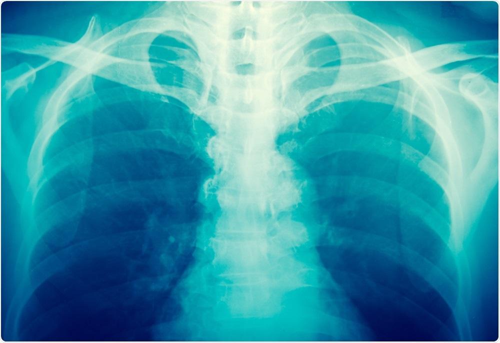 X-ray image - taken by toeytoey