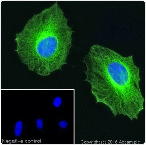 Immunocytochemistry of formaldehyde-fixed HeLa cells stained with anti-beta tubulin antibody (ab6046). The secondary antibody (green) was ab150081 Alexa Fluor® 488 goat anti-rabbit IgG. Nuclear DNA was labeled with DAPI (shown in blue). The negative control is a secondary only assay. Click here to view the full datasheet for ab6046. 10 µl trial size available.
