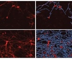 Real-Time, Long-Term Quantitative Analysis of iPSC-Derived Neuronal Cell Health