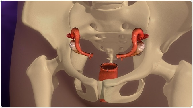 Chronic Health Issues with Hysterectomy