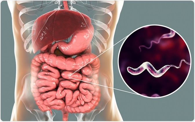 Campylobacter bacteria in intestine, C. jejuni, C. fetus, Gram-negative S-shaped motile bacteria the causative agent of food-borne infection campylobacteriosis, 3D illustration. Image Credit: Kateryna Kon /Shutterstock
