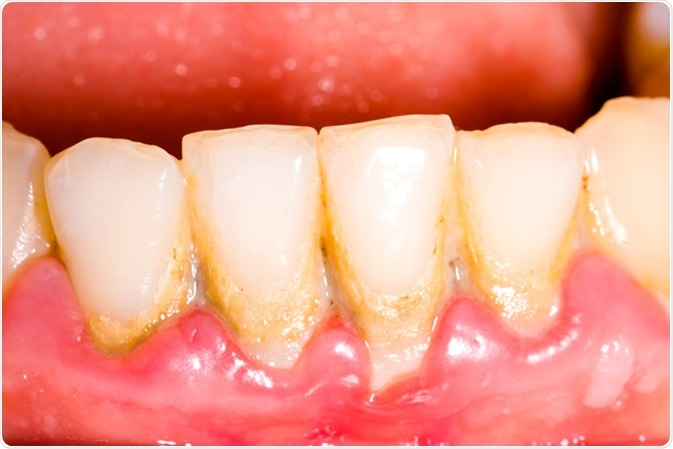 Unhealthy denture, tartar on frontal teeth, plaque and gingivitis. Image Credit: Botazsolti / Shutterstock