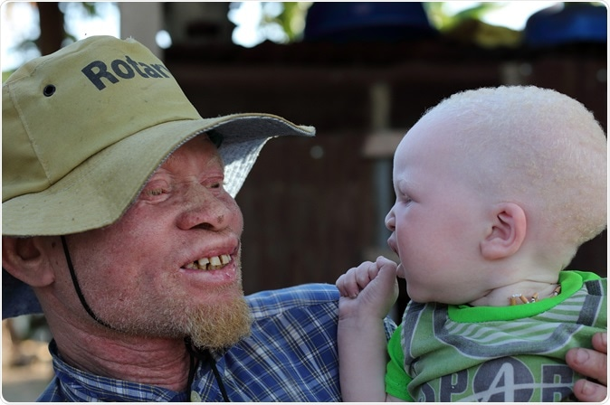 UKEREWE - TANZANIA - JULY 2, 2015: Unidentified albino father and son. Image Credit: Dietmar Temps / Shutterstock