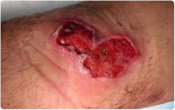 Image Credit: Buruli ulcer in a long-term traveler to Senegal. Image Credit: CDC