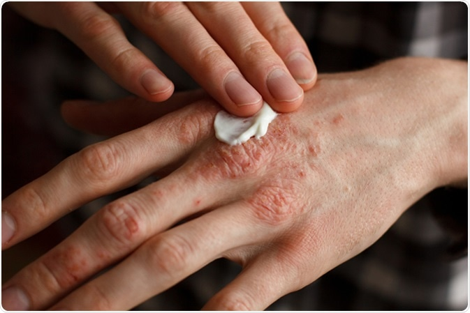 Eczema. Image Credit: Ternavskaia Olga Alibec / Shutterstock