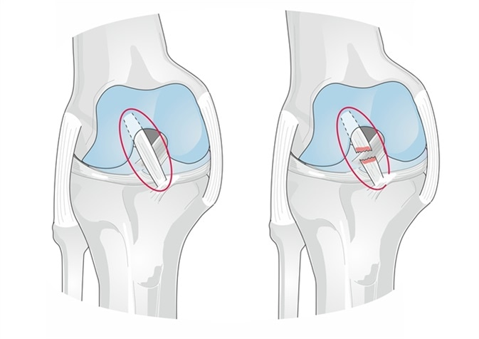 The anterior cruciate ligament (ACL) of the knee is injured usually during sports and activities. Image Credit: Soleil Nordic / Shutterstock