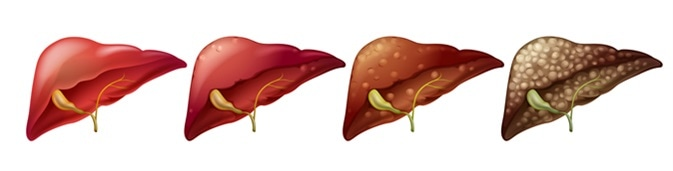 Different stages of human liver illustration. Image Credit: BlueRingMedia / Shutterstock