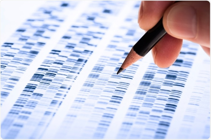 Scientist analyzes DNA gel used in genetics, forensics, drug discovery, biology and medicine. Image Credit: Gopixa / Shutterstock