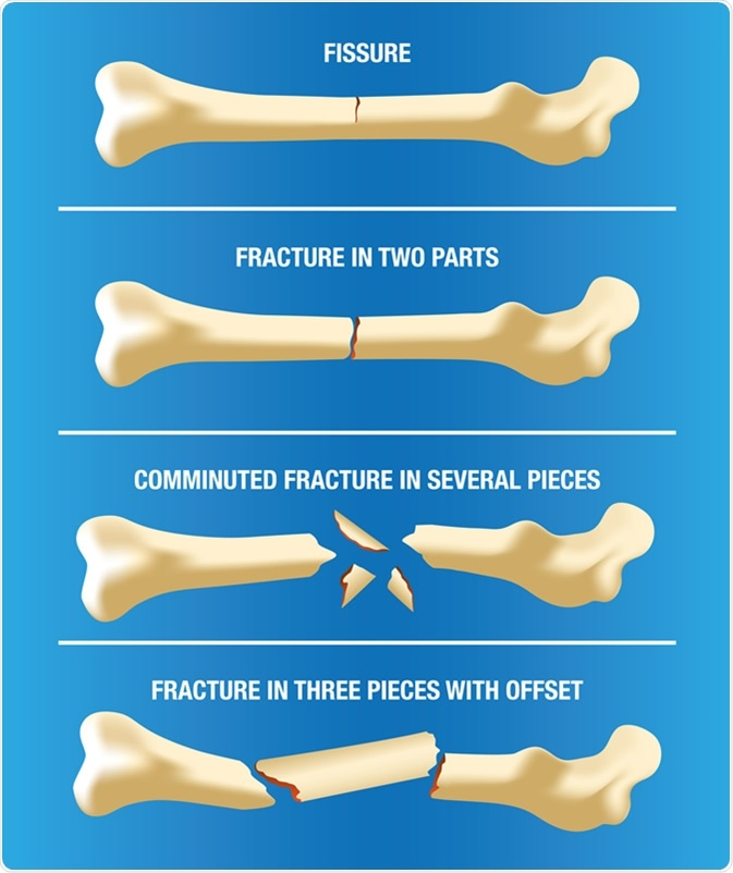 Crushed Human Bone : Broken bone first aid
