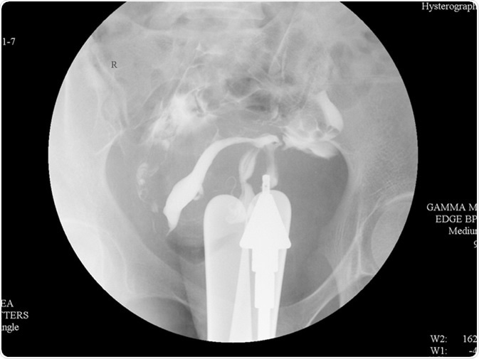 Hysterosalpingography (HSG) is a fluoroscopic X-ray study of a woman's uterus and fallopian tubes. Image Credit: Whitetherock photo / Shutterstock