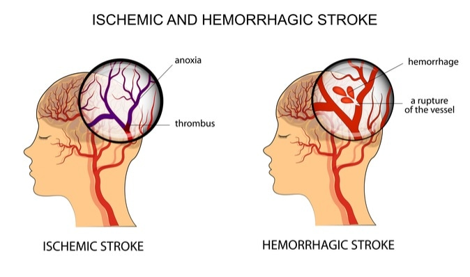 Illustration of the vessels of the brain and a brief description of the causes of stroke. Image Credit: Artemida-psy / Shutterstock
