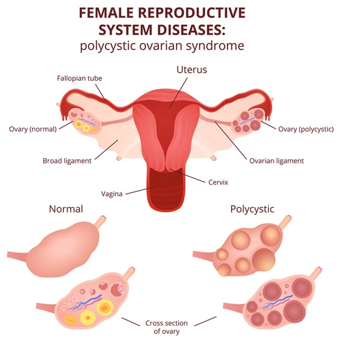 Female reproductive system, the uterus and ovaries scheme, polycystic ovary syndrome, ovarian cyst. Image Credit: Marochkina Anastasiia / Shutterstock