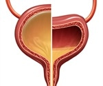 Treating Overactive Bladder Syndrome with Interstim Therapy