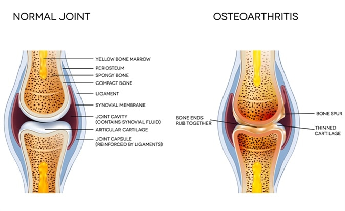 Osteoarthritis and normal joint anatomy. Image Credit: Tefi / Shutterstock