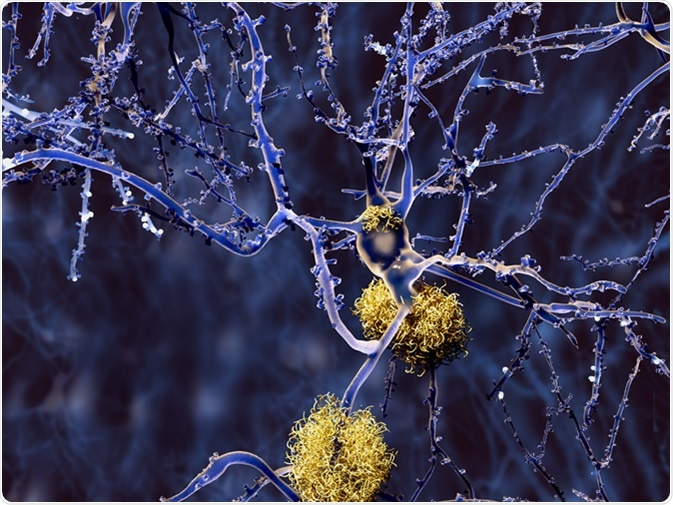 Alzheimer disease: neuron with amyloid plaques. Image Credit: Juan Gaertner / Shutterstock
