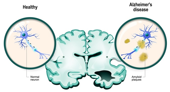 Human brain, in two halves: healthy and Alzheimer