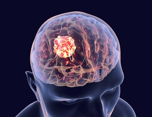 New blood test could help hasten the diagnosis of brain tumors