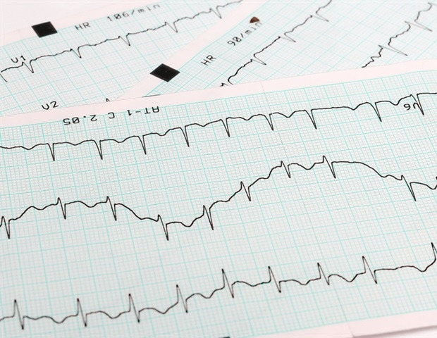 Getting closer to personalized medicine for patients with atrial fibrillation