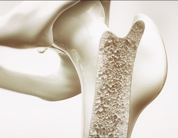 UTSA scientists study osteoporotic bone fractures to rethink treatment
