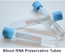 Blood RNA Preservation and Purification System from Bio-Synthesis