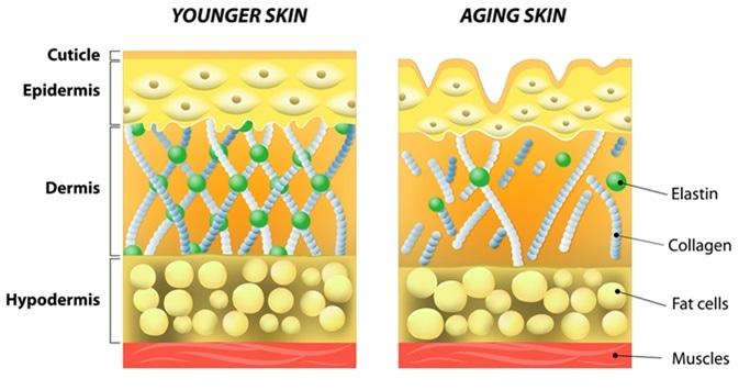 Younger skin and aging skin diagram. Image Credit: Designua / Shutterstock
