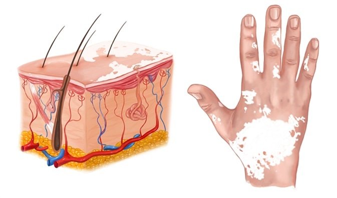 Illustration of vitiligo - Image Credit: corbac40