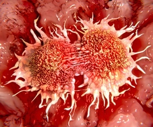 Ground-breaking therapeutic process can destroy bowel cancer cells