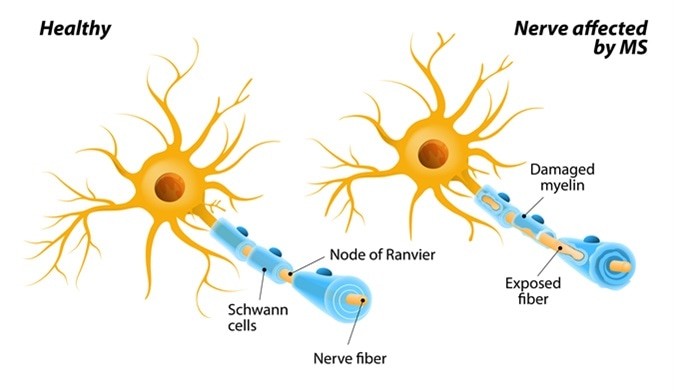 Multiple sclerosis or MS. autoimmune disease. the nerves of the brain and spinal cord are damaged by one's own immune system. resulting in loss of muscle control, vision and balance. Image Credit: Designua / Shutterstock