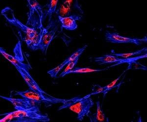 Treating pre-cancerous stem cells at early stage could be key to preventing bowel cancer