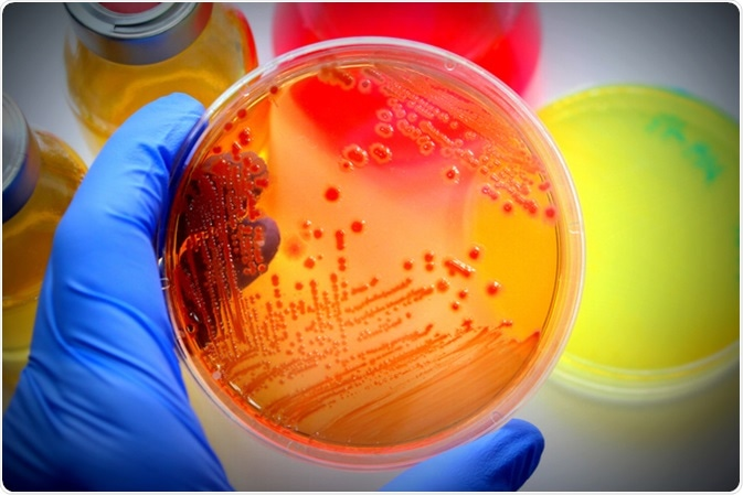 E. coli grew in (differential medium) MacConkey agar. Image Credit: CA-SSIS / Shutterstock