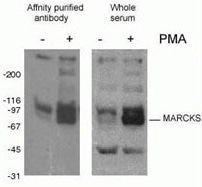 WB result of phospho-Marcks antibody (10018-3-AP, 1:1500) with mouse J774 macrophage cells treated with PMA.