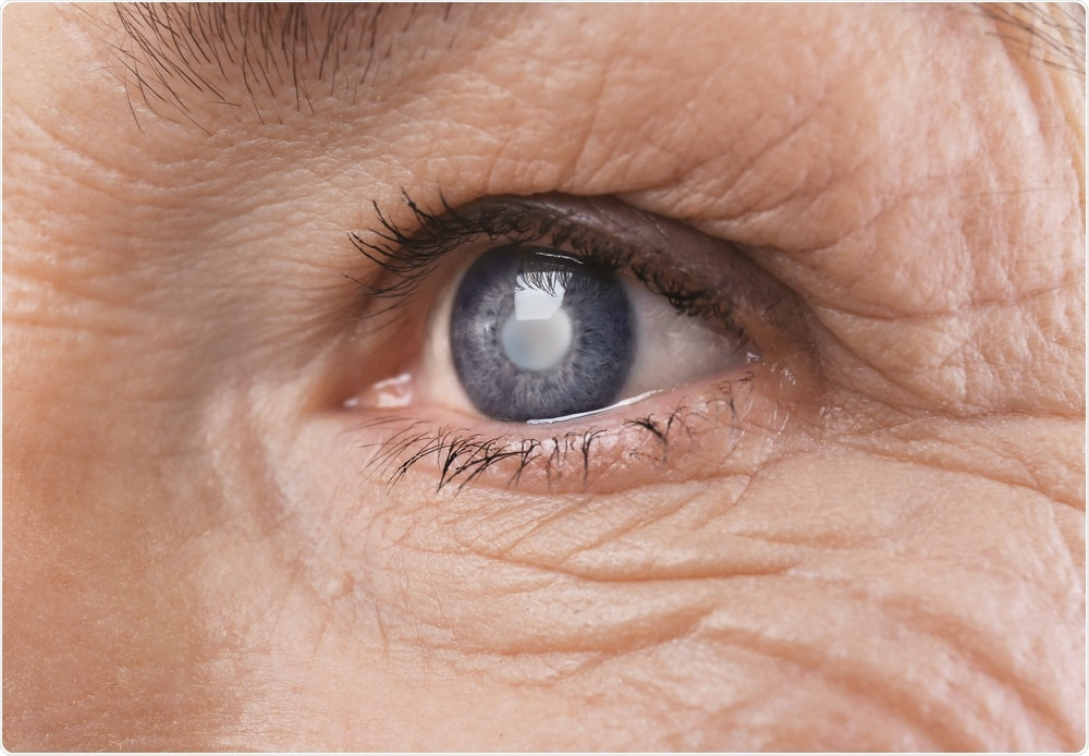 Elderly woman with cataracts