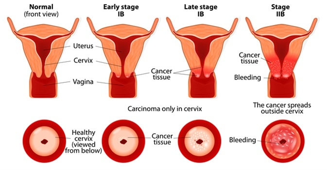 Cervical cancer stages. Image Credit: Designua / Shutterstock