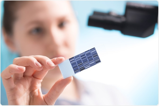 Chromatogram sequencing on slide. Image Credit: science photo / Shutterstock