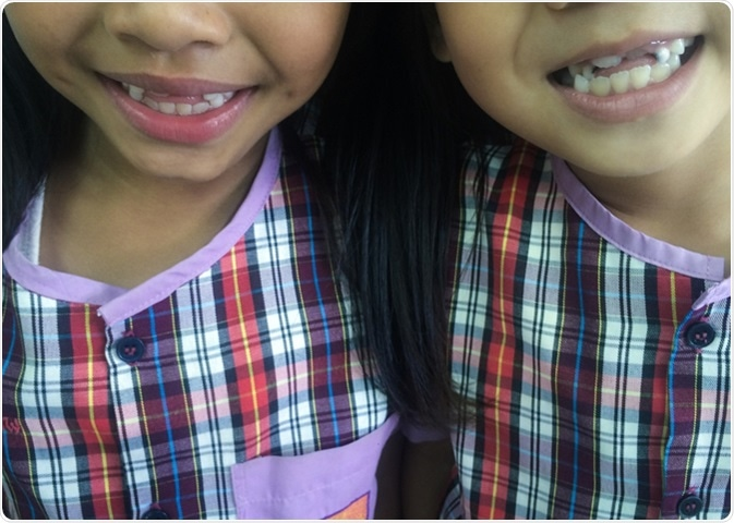 Ugly duckling stage smile from 2 young girls at primary school. Image Credit: Daran Jiravichitchai / Shutterstock